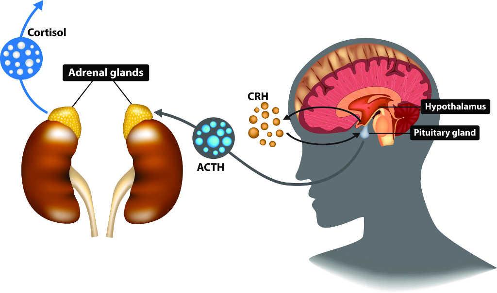 Fases de la fatiga adrenal