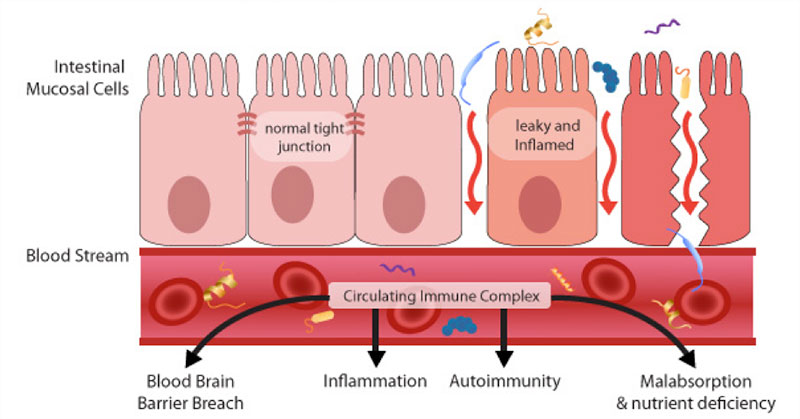 Como saber si tengo intestino permeable