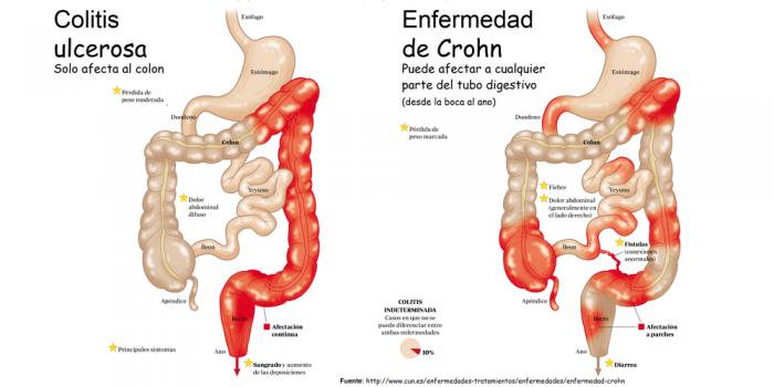 colitis-ulcerosa-enfermedad-crohn - intestino irritable